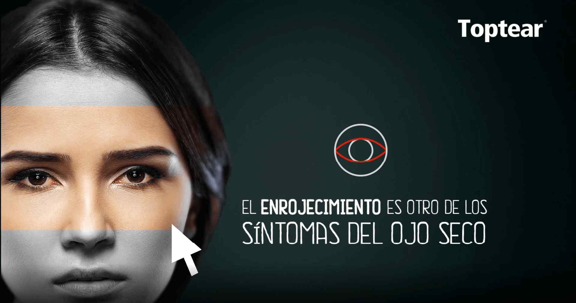 El enrojecimiento es otro de los sintomas del ojo seco