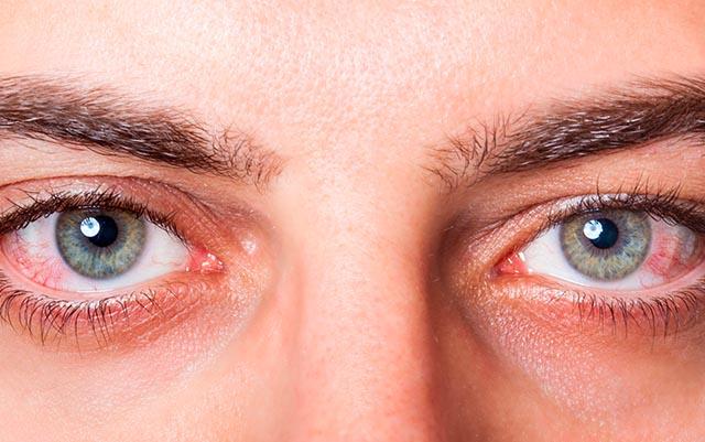 Causas del ojo seco